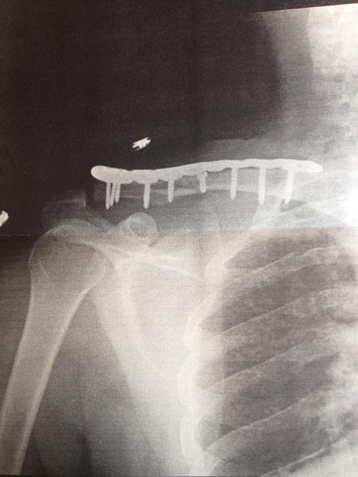 Broken is Bones